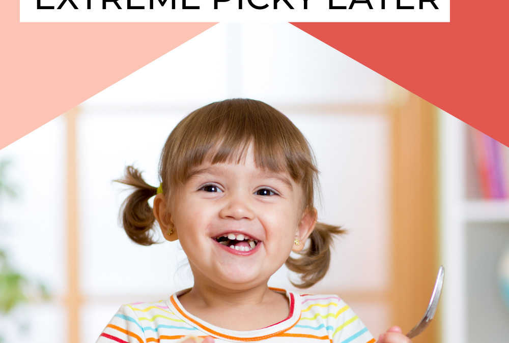 6 Simple Dos and Don'ts for Feeding an Extreme Picky Eater